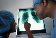 Oltre 2.000 nuovi casi all'anno di tumore del polmone in Puglia