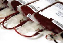 HIV contratto a causa di una trasfusione sbagliata