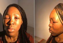 Bari – Studentessa picchiata da ex marito
