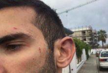 """Barletta – Aggressione omofoba sul luogo di lavoro ma """"si è trattato di un litigio sbagliato"""". Foto"""