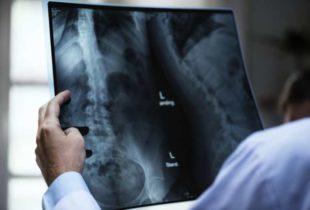 Barletta – Luminari di tutto il mondo si confrontano sulle nuove frontiere della Radiologia Muscolo-Scheletrica