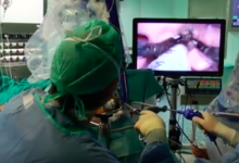 Barletta – Ospedale: più di 10mila interventi di otorinolaringoiatria dal 2008
